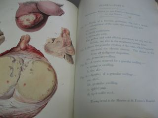 Observations on the Strucure and Diseases of the Testis
